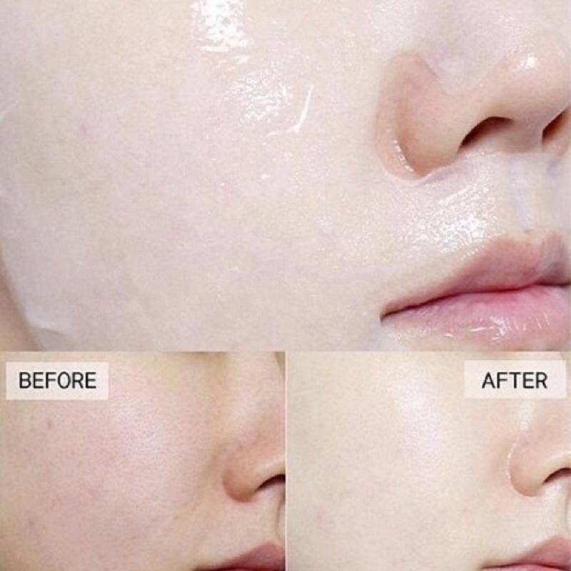 3W Clinic Essential Up Vitamin Sheet Mask 25ml